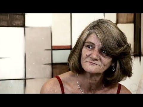 Transformação Da Face: Depois De Uma Vida Sofrida, Eliana Recupera O Sorriso