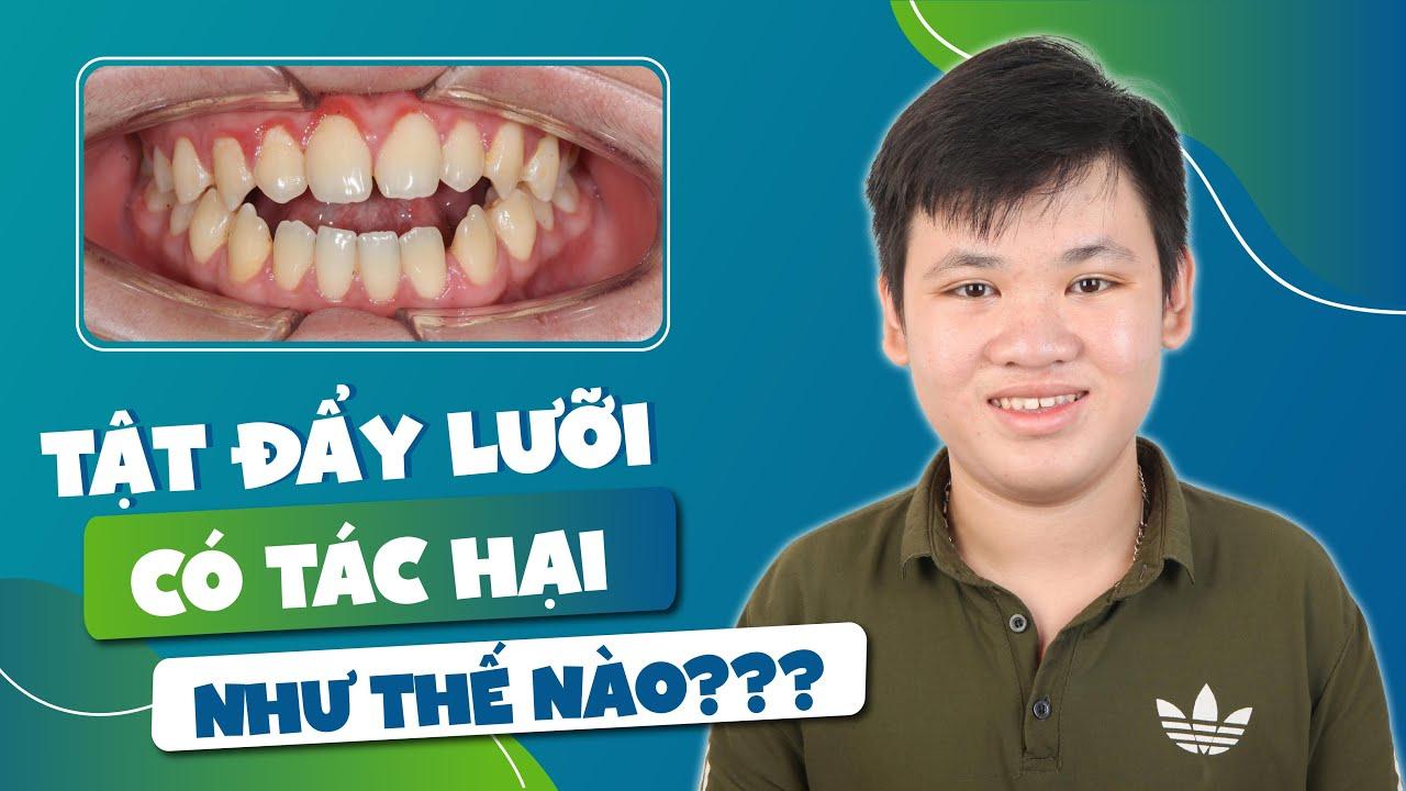 Niềng răng điều trị khớp cắn hở và thưa răng do tật đẩy lưỡi từ nhỏ