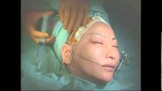中村うさぎさんもフェイスリフト経験者! たるんだ顎のラインに対して、...
