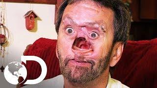 Câncer facial: o homem sem rosto | Meu Corpo, Meu Desafio l Discovery Brasil
