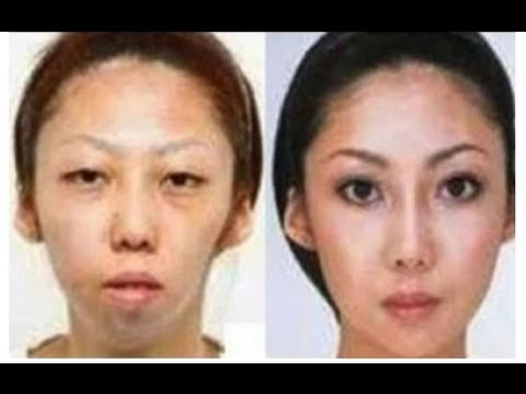 Man Sues Wife Over Secret Plastic Surgery - and Wins! | China Uncensored