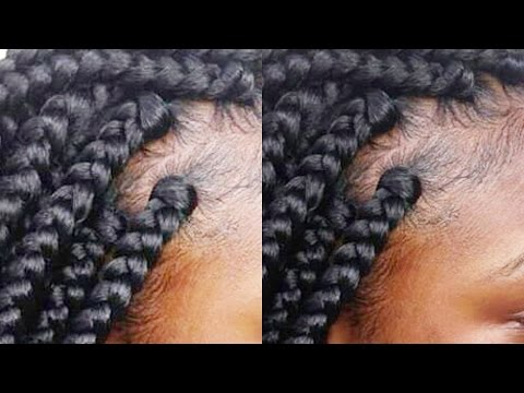 Tips and Tricks: Gripping The Roots| Rubber Band Method|Box Braid Like A Pro part 4