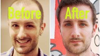 Hair Transplant Results -  True Stories