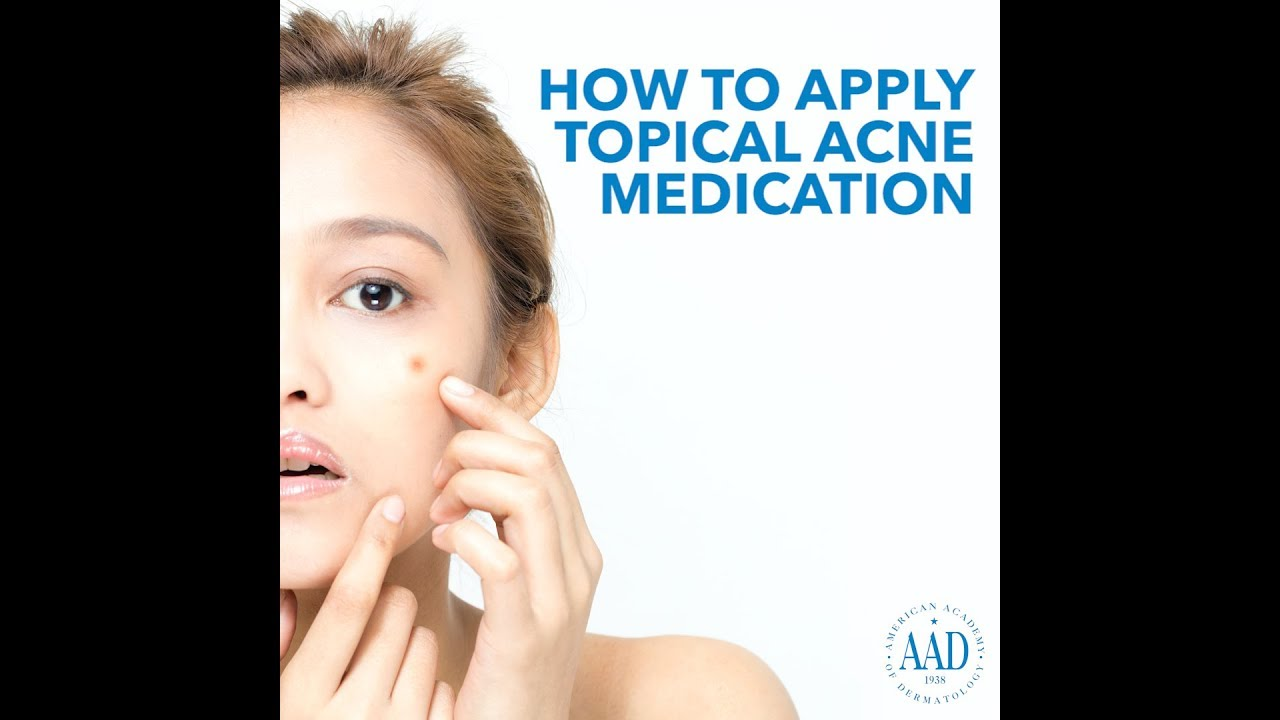 Acne Diagnosis And Treatment
