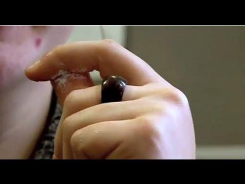 Fingertips Glued Together (Part 1) - Bizarre ER