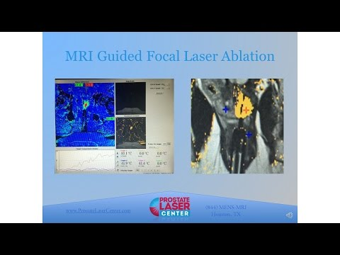 Prostate mpMRI and MRI Guided Focal Laser Ablation (FLA): Pr