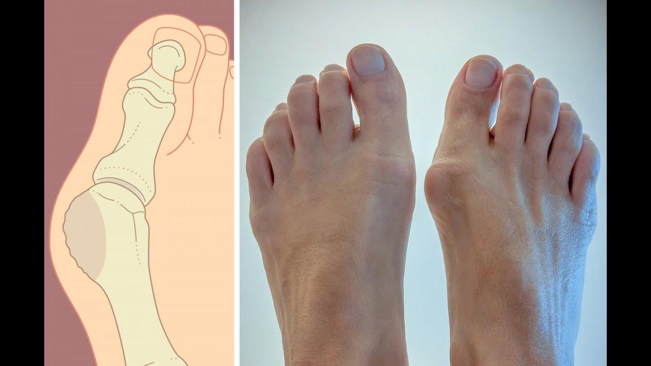Удаление косточки на ноге лазером цена операции в клинике Санкт-Петербурга