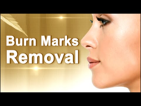 How To Remove Burn Marks Naturally At Home Natural Home Remedy
