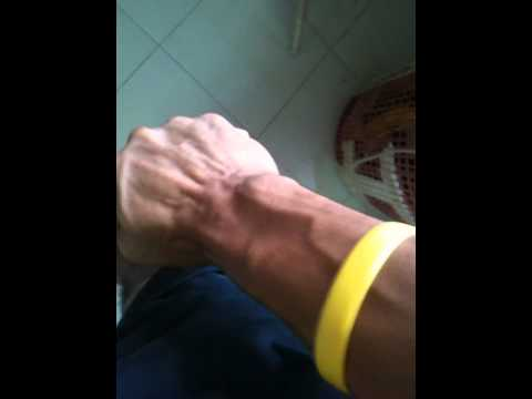 Forearm Finger Twitch - YouTube