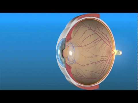 Monofocal Lens (IOL)
