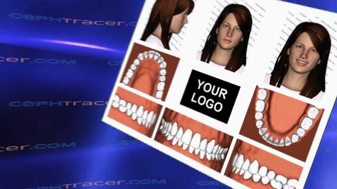 free orthodontic photo montage part two youtube