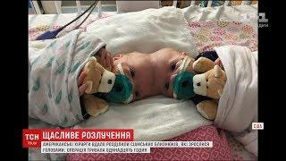 Хірурги США провели 11 годинну операцію, аби розділити сіамських близнюків