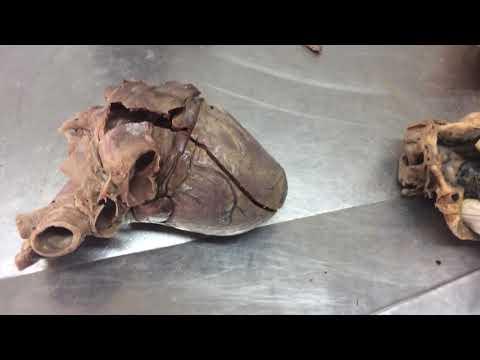 Left atrium and left ventricle