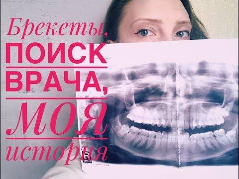 Брекеты. Как выбрать врача-ортодонта. Глубокий прикус. Удаление зубов. Часть 2.