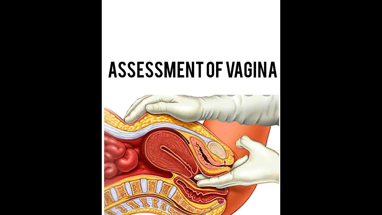 p.v:-(vaginal examination;) - YouTube