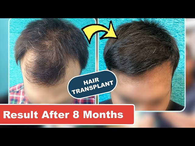 Hair Transplant 8 Months Results | 2200 Grafts on Frontal Area @SkinQure