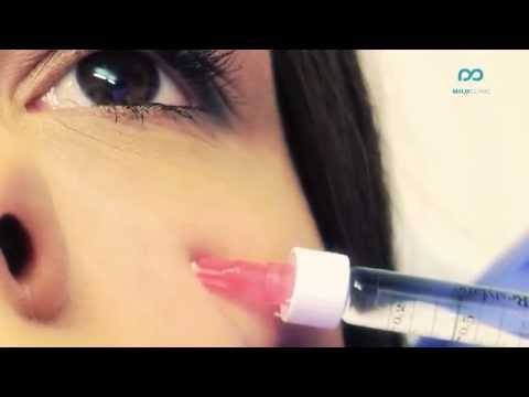 Non-surgical eyebag removal (tear trough) - wow treatment