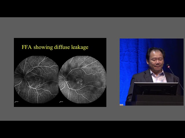 EURETINA 2018 - SubLiminal laser in macular diseases