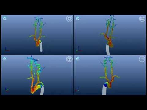 [E8IGHT] Blood flow simulation using CFD analysis N-Flow