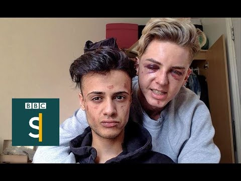 Beaten Up For Being Gay - BBC Stories