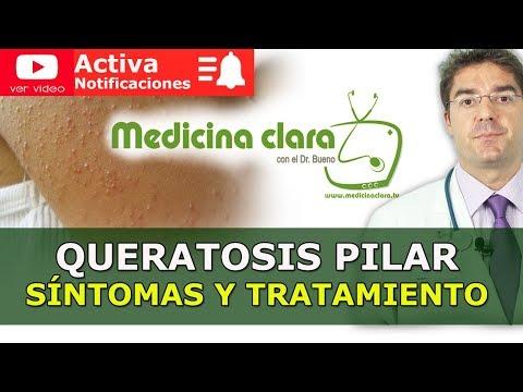 Queratosis pilar | Granos en brazos y piernas | Medicina Clara con el Dr. Bueno