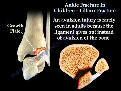 Ankle Fracture In Children Tillaux Fracture - Everything You Need To Know - Dr. Nabil Ebraheim