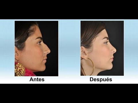 Dr Álvaro Correa Cirujano Facial Experto en Rinoplastia Medellin Colombia
