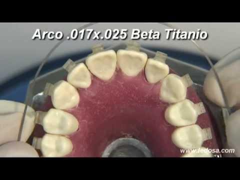 ORTOCERVERA / Ortodoncia: Terminación, Dobleces y Elásticos
