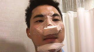 남자 코 성형 수술 2주 브이로그(코, 턱 끝 보형물)…