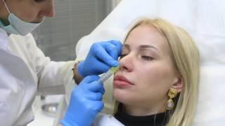 Безоперационная коррекция носа