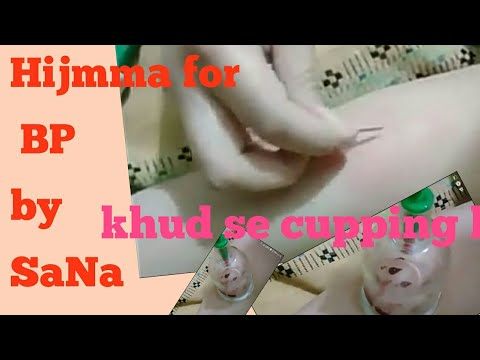 khud hijama kaise kare/hijama ka tarika in urdu/خود پر حجامہ کیسے کر یں/Hijamma trika