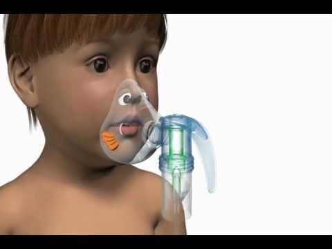 Pari Bubbles Nebulizer Mask - medical device animation