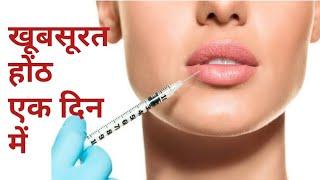 Lips filler    lips surgery india   lips filler cost in india    lips filler in hindi   pink lips