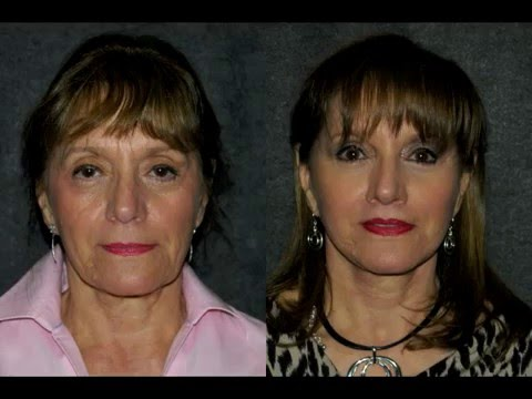 mini facelift and fat transfer before after 68 woman best natural facelift surgeon dr jacono youtube
