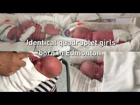 Identical quadruplets born in Edmonton