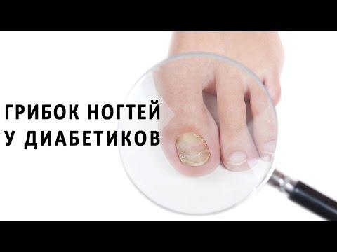 Натоптыши (сухие мозоли) на пальцах ног, пятках, ступнях