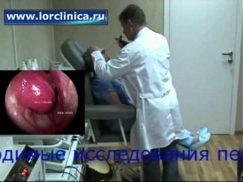 Лечение хронического ринита у взрослых: капли, операция и