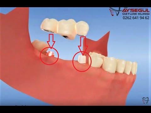 Köprü restorasyon yapımında diş-implant bağlanması