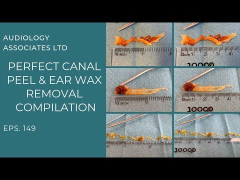 PERFECT EAR CANAL PEEL AND EAR WAX REMOVAL COMPILATION   EP 149
