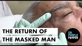 Video Yup, the Return of the Masked Man: Blackheads download MP3, 3GP, MP4, WEBM, AVI, FLV November 2017