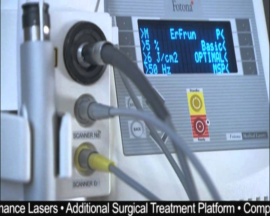 What others say about Fotona's SP Dynamis aesthetics and surgery laser