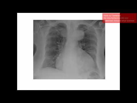 AMEE Helsinki 2017 - Acute Illness Programme Example Case