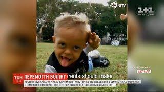 Світові зірки підтримали австралійського хлопчика, який ледь не вкоротив віку через булінг