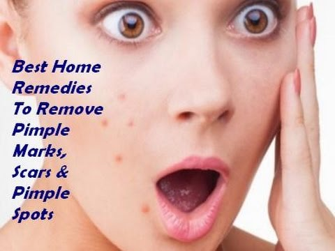 what is the best home remedy for pimples