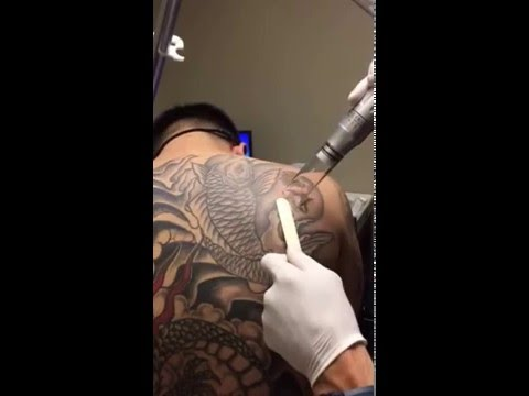 Laser tattoo removal at hoboken edgewater med spas in for Tattoo removal nj