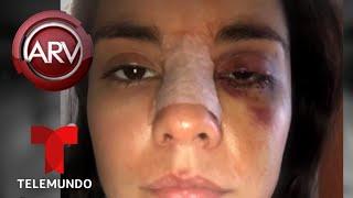 Nuevos detalles de la brutal golpiza a actriz colombiana | Al Rojo Vivo | Telemundo