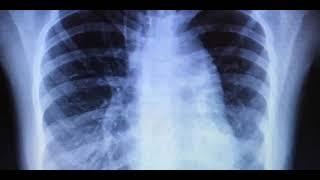 Pulmonar edema rápido pronóstico del