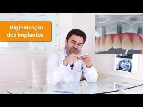 Como higienizar os implantes dentários (Técnicas de Higienização)