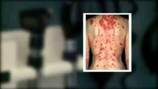 Lupus a difficult disease to diagnose, doctors say