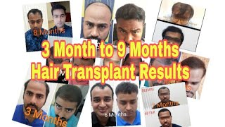Real & Successful Hair Transplant Results in Mumbai,  India || Best Hair Transplant 2019